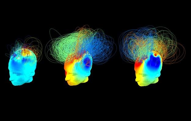Sygnał mózgu osób w stanie wegetatywnym (po lewej i w środku) oraz osoby zdrowej (po prawej)